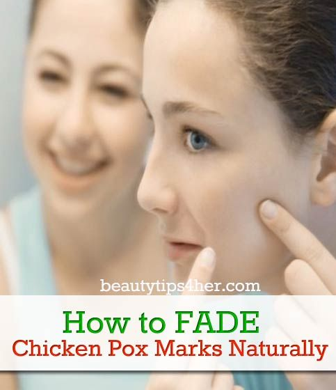 How To Get Rid Of Chicken Pox Marks Naturally