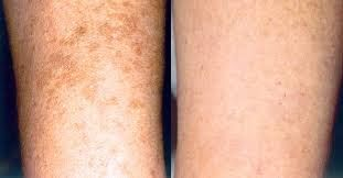 Can You Get Acne On Your Legs Anti Aging And Skin Correction Blog Skin Correcting Damaged Skin Age Spots On Face