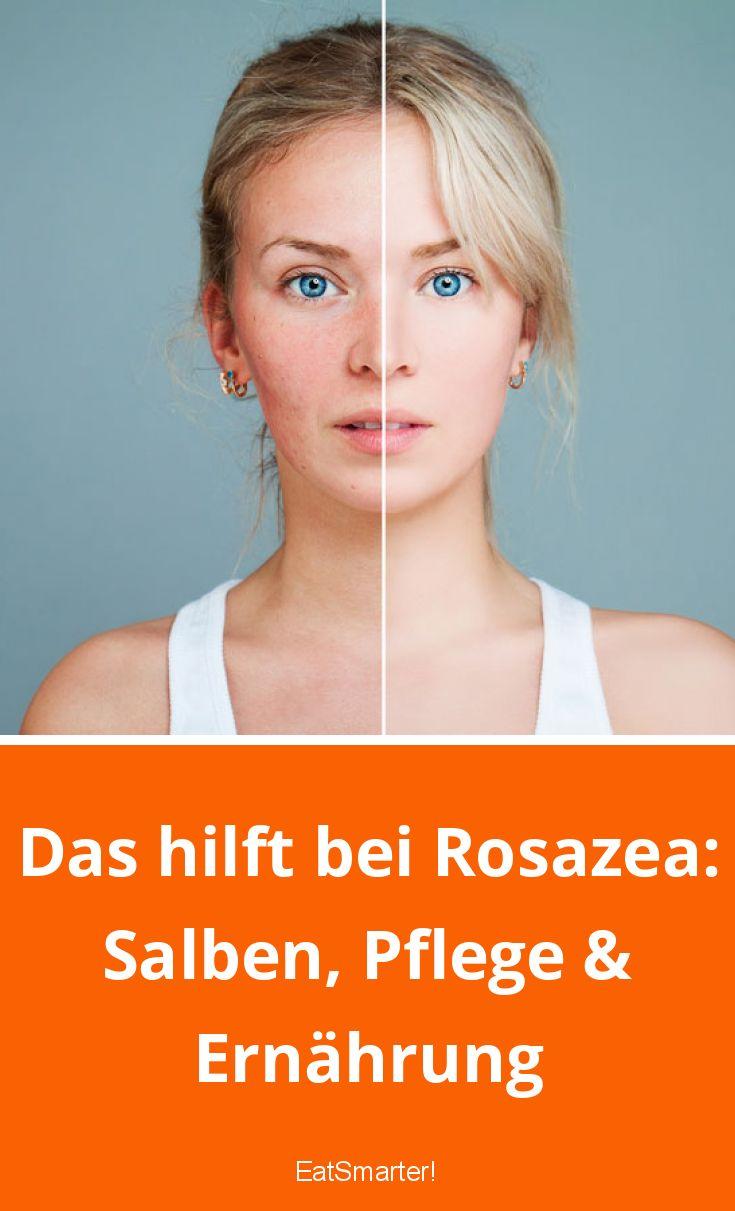 Das hilft bei Rosazea: Salben, Pflege & Ernährung | eatsmarter.de