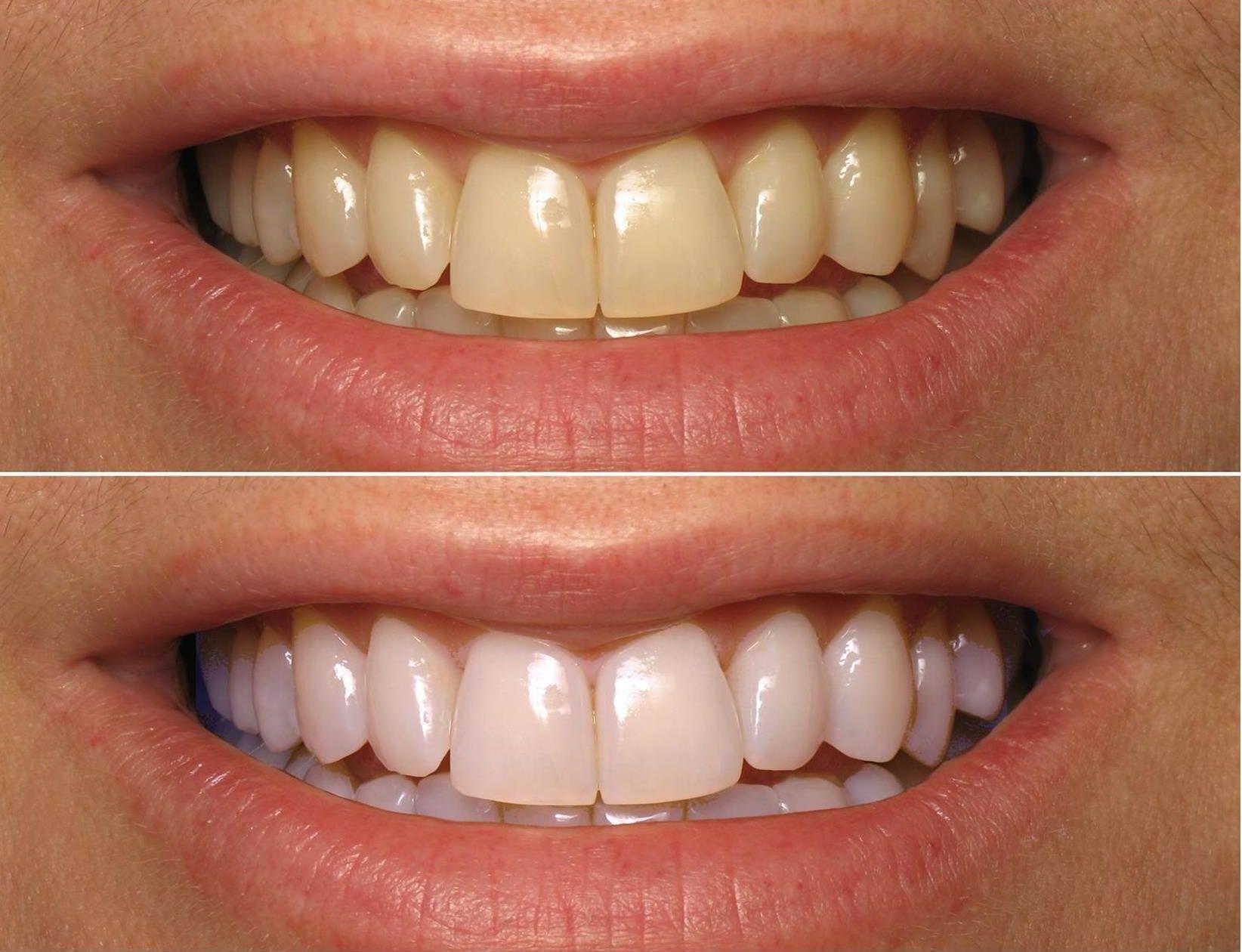 Do it yourself teeth whitening remedies blog smile perfectors do it yourself teeth whitening remedies solutioingenieria Gallery