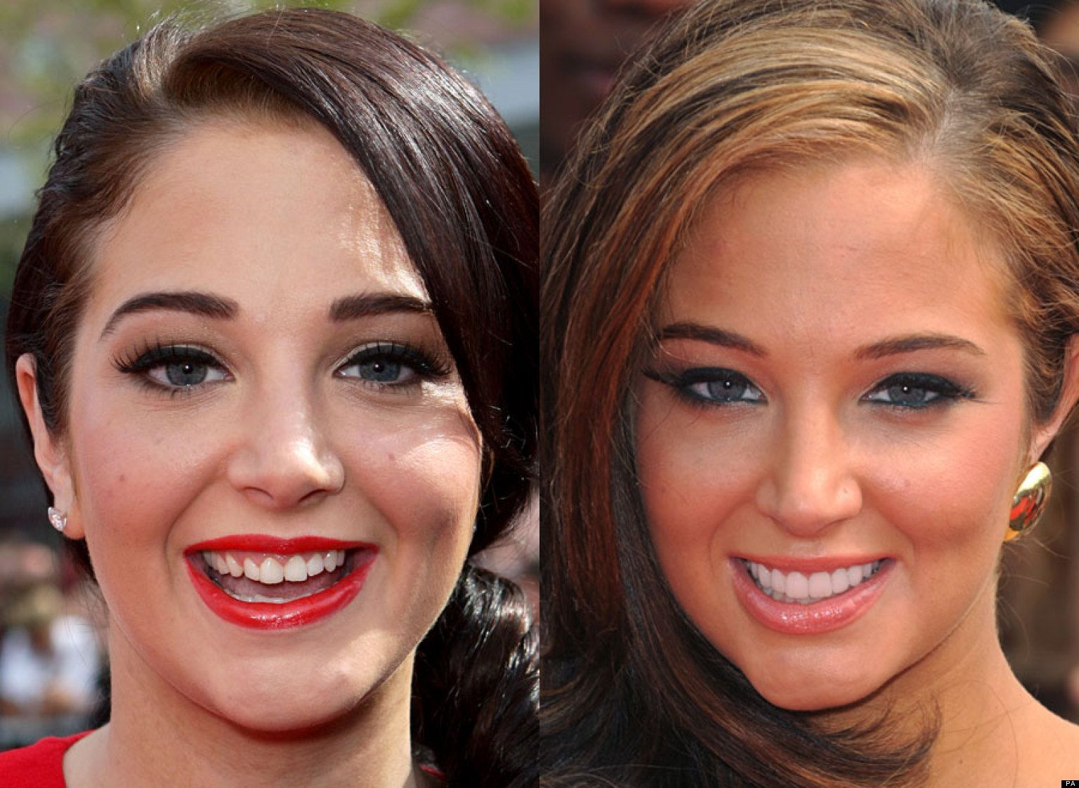 Fashion week With celebrities perfect teeth for lady