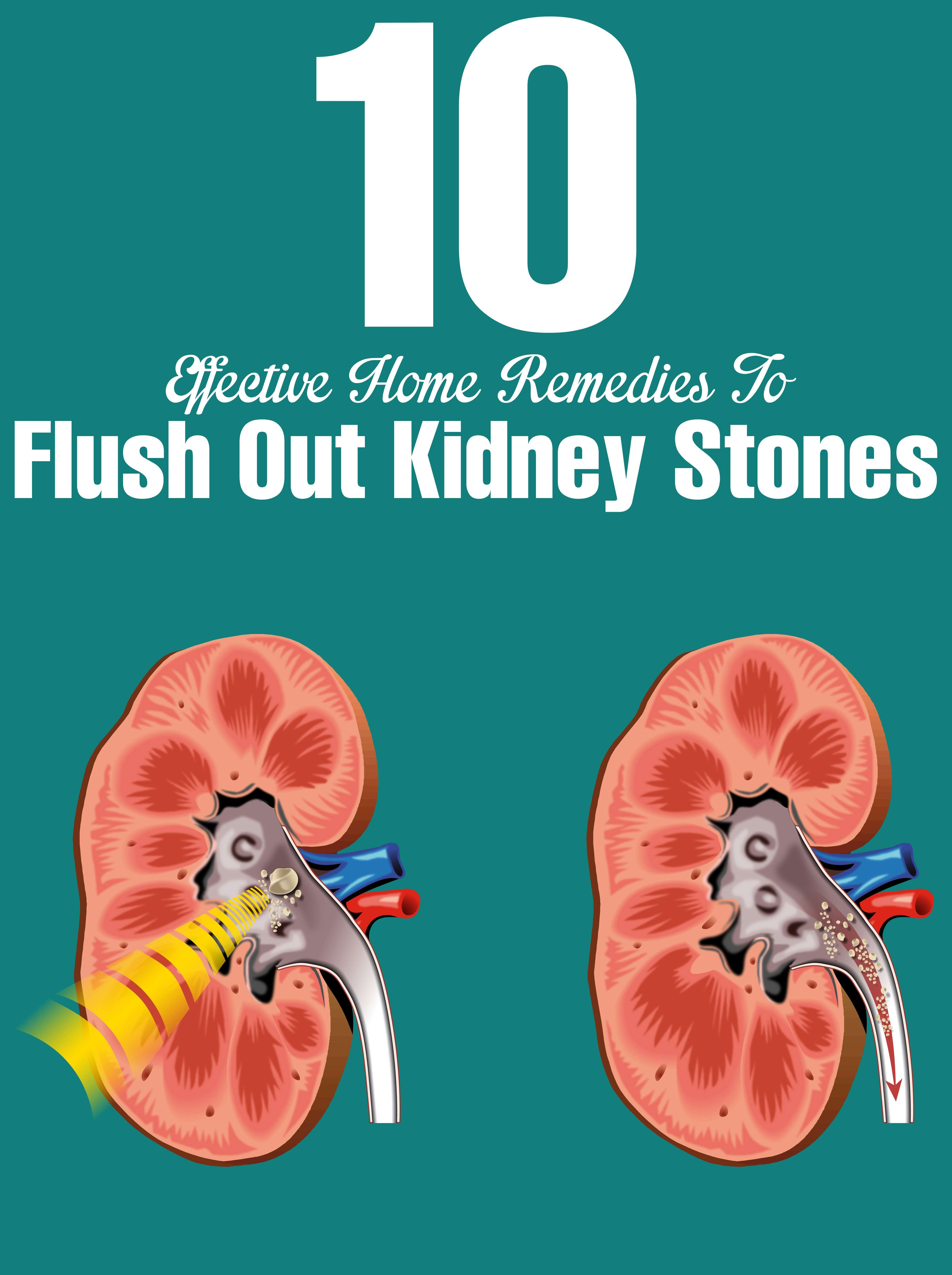 What are the kidney stones