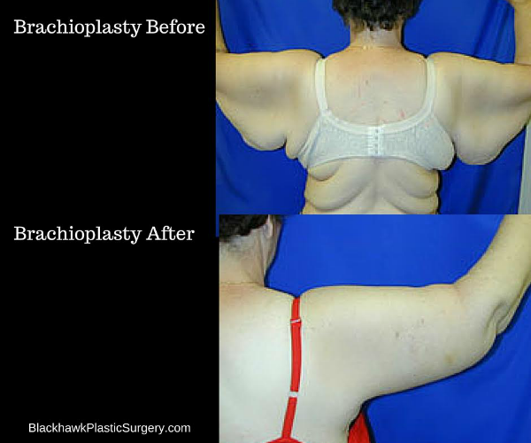 Brachioplasty Surgery After Extreme Weight Loss