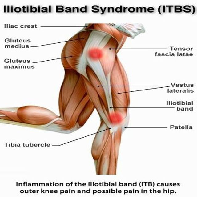 Iliotibial band syndrome is a common injury to the knee generally associated with running for Exterior knee pain
