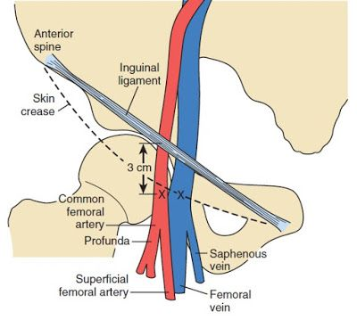Cardiac Anesthesiologist Femoral Artery And Vein Relevant Anatomy