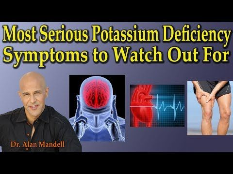 3 Most Serious Potassium Deficiency Symptoms to Watch Out For - Dr Alan ...