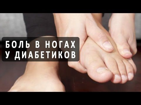 Что делать, если болят ноги при сахарном диабете? - YouTube ...