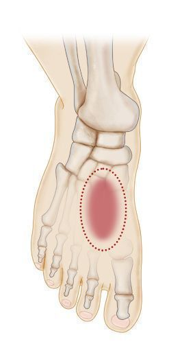 Top Of Foot Pain Causes Treatments Feet In 2018 Pinterest