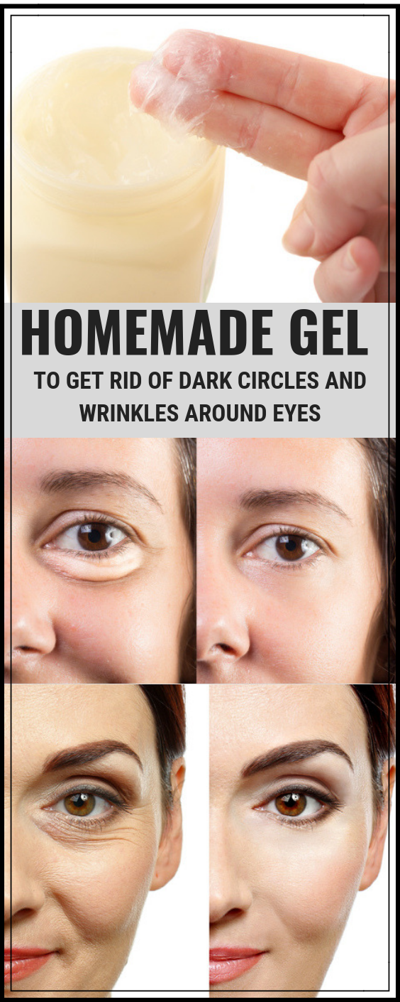 Homemade Under Eye Gel To Remove Dark Circles And Wrinkles ...