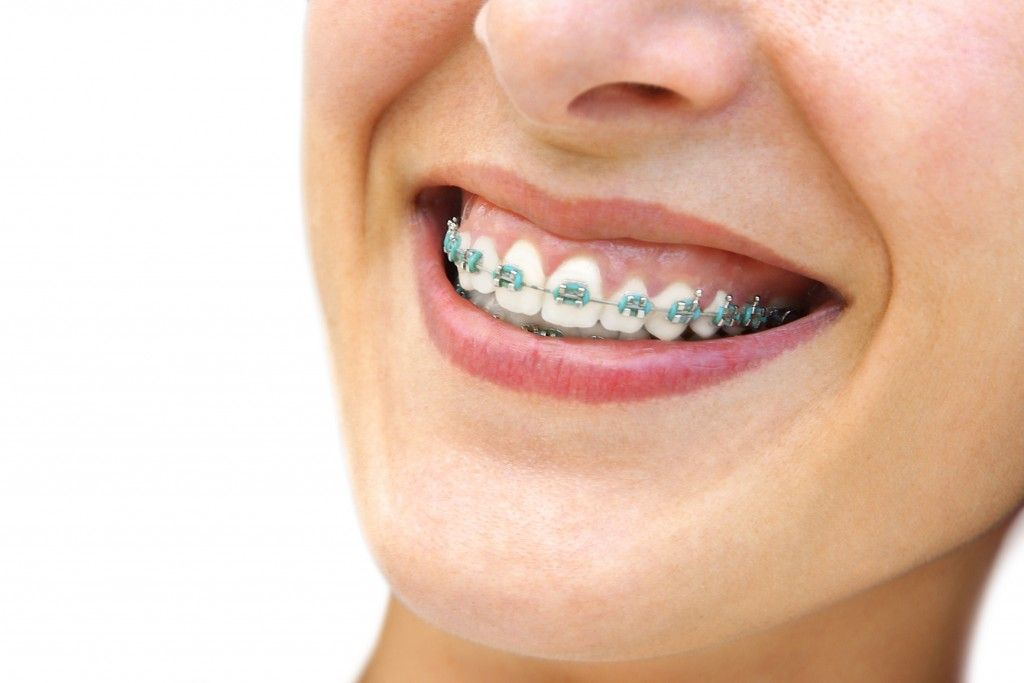 Activities to avoid when you have braces eating hard or