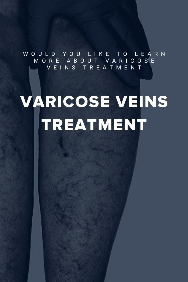 veins varicose treatment