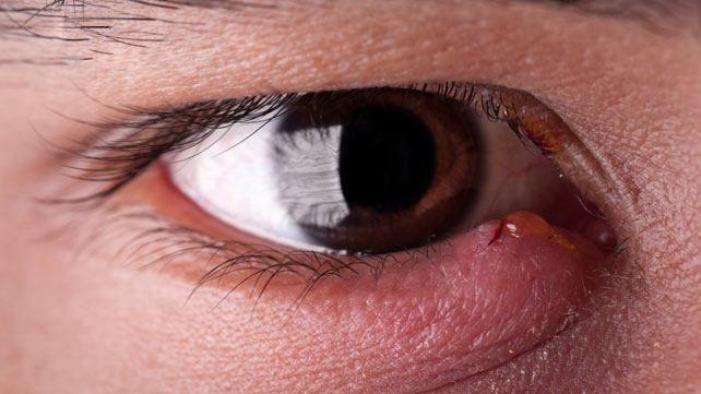 Hausmittel gegen ein Gerstenkorn am Auge | Stye remedy