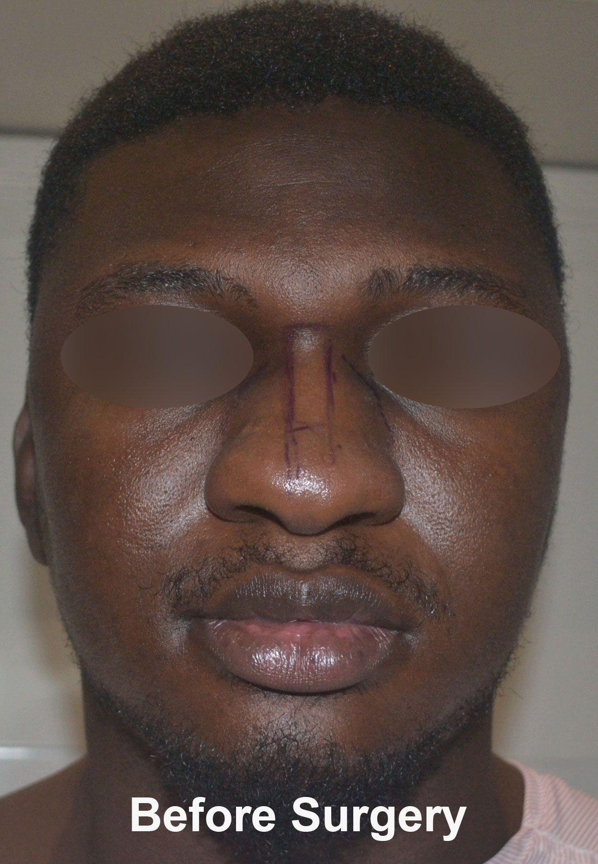 Best Rhinoplasty Surgeon Delhi Nose Plastic Surgeon India Perfect Nose Rhinoplasty Rhinoplasty Surgeon