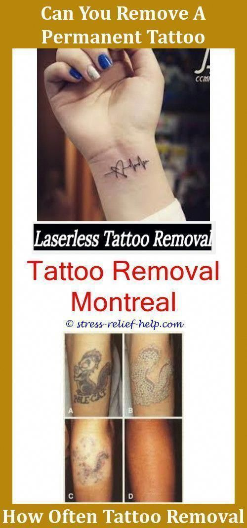 Tattoo Removal Cost Does Laser Hair Removal Mess Up ...