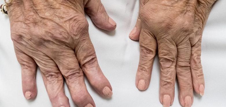 تقييم التهاب المفاصل الروماتويدي Rheumatoid Arthritis Joint Injections Rheumatism
