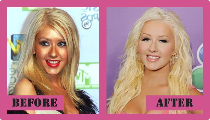 Christina Aguilera Plastic Surgery Before And After Christina Aguilera Plastic S... - Aguilera Plastic Surgery Before And After Christina Aguilera Plastic S... -