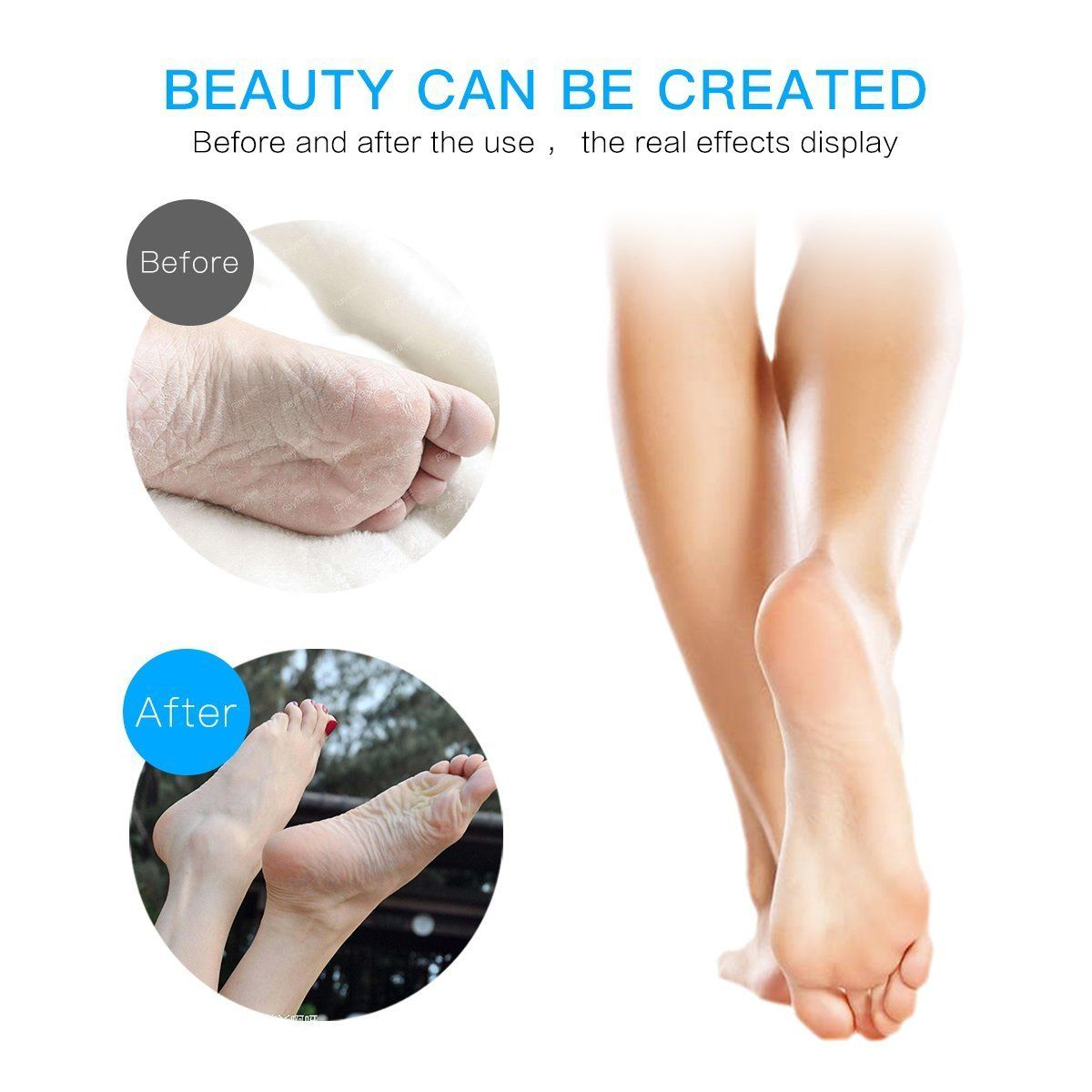 Amazon Com Dr Heiz Rechargeable Callus Remover With Led Light Electric Foot File Remove Cracked Dead Thick Hard Skin R Foot File Callus Removal Pedicure Tools