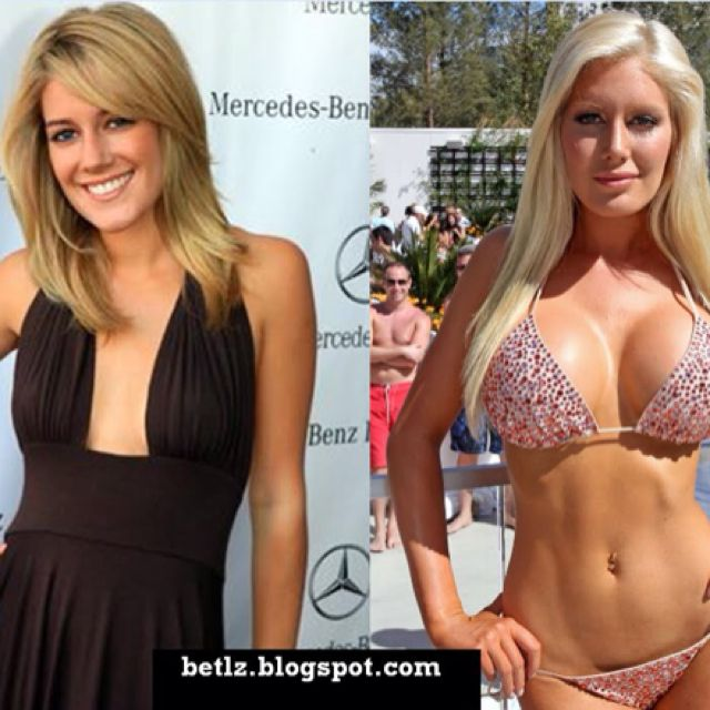 Celebrities With Plastic Surgery Heidi Montag Courteney: Most Of This Plastic Is Not So Fantastic (14 Photos