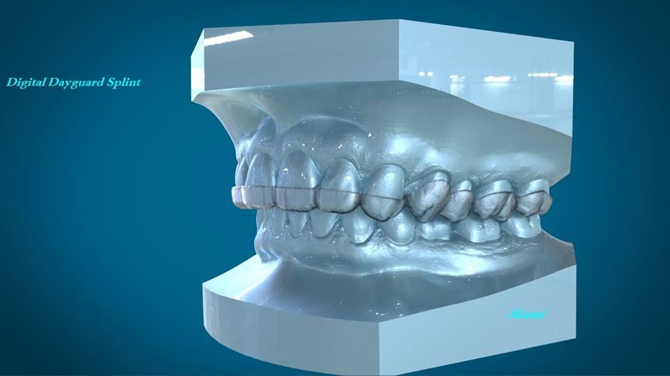 Digitally Rendered Dental Dayguard Splint 3Shape Appliance Designer
