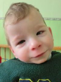 picture of child with fetal alcohol syndrome | Fetal Alcohol ...
