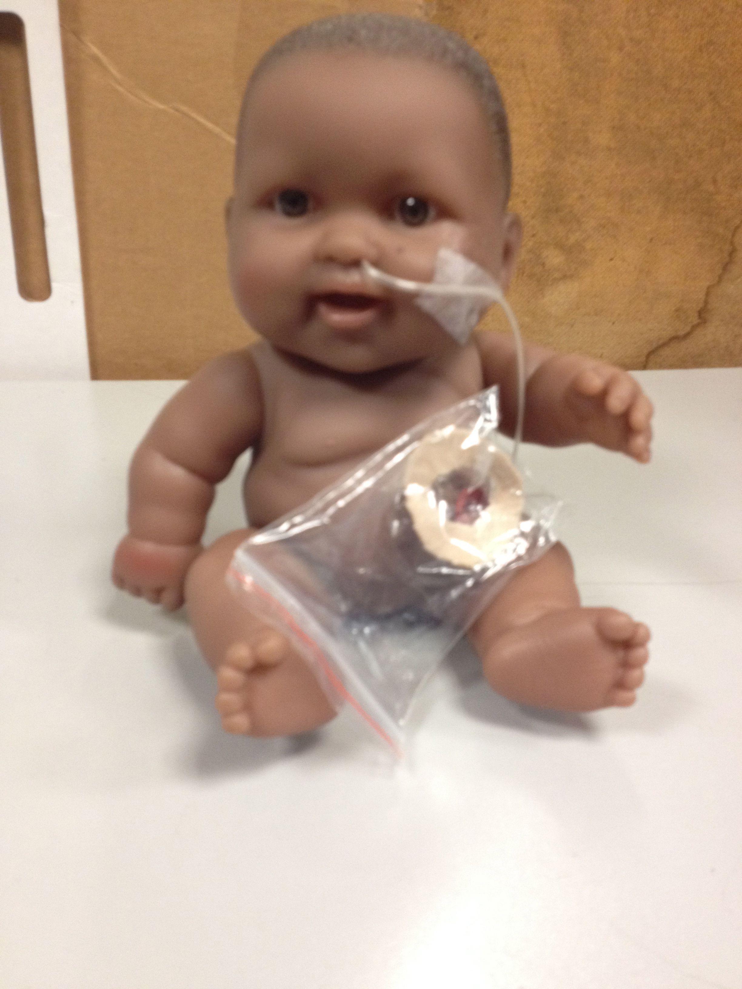 Medical Play Teaching Kids About A Ng And Stoma Used Tubing Tape Ziplock Bag Balloon Moleskin Looseparts Childlife