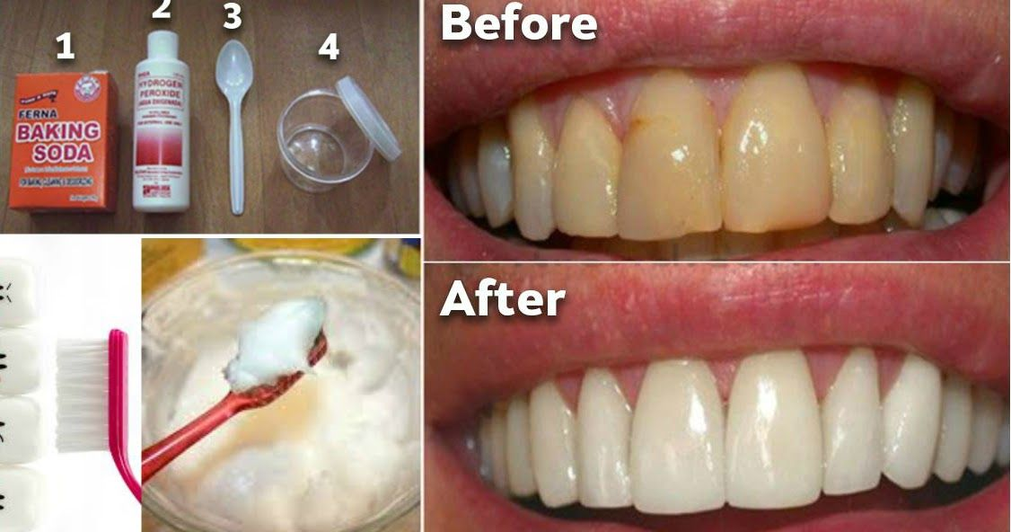How to remove plaque from teeth without expensive