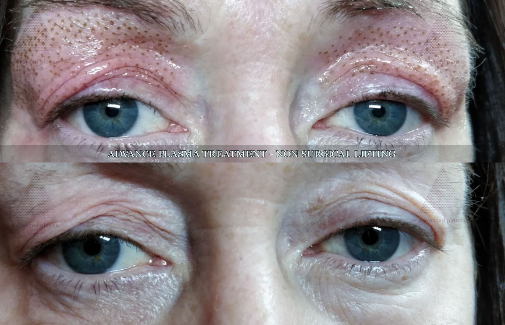 Pin By Yue Man On Work Beauty Facial Rejuvenation Skin Skin Tightening