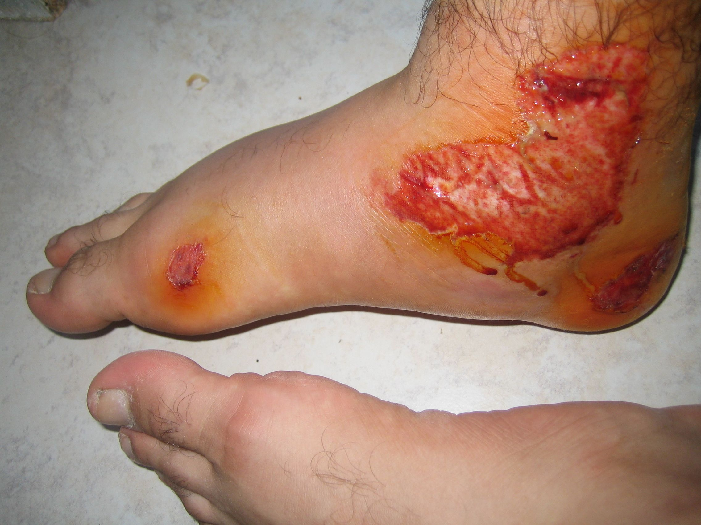 wound open abrasion graze scrape injury on foot and ankle