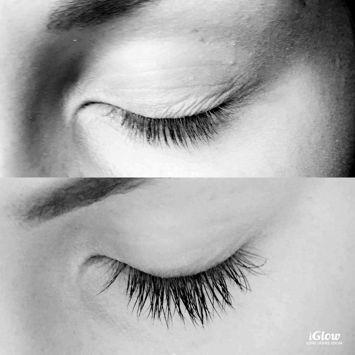 dfcf6addd08 iGlow.no Long Lashes Serum | Beauty | Lashes, Long lashes, Serum