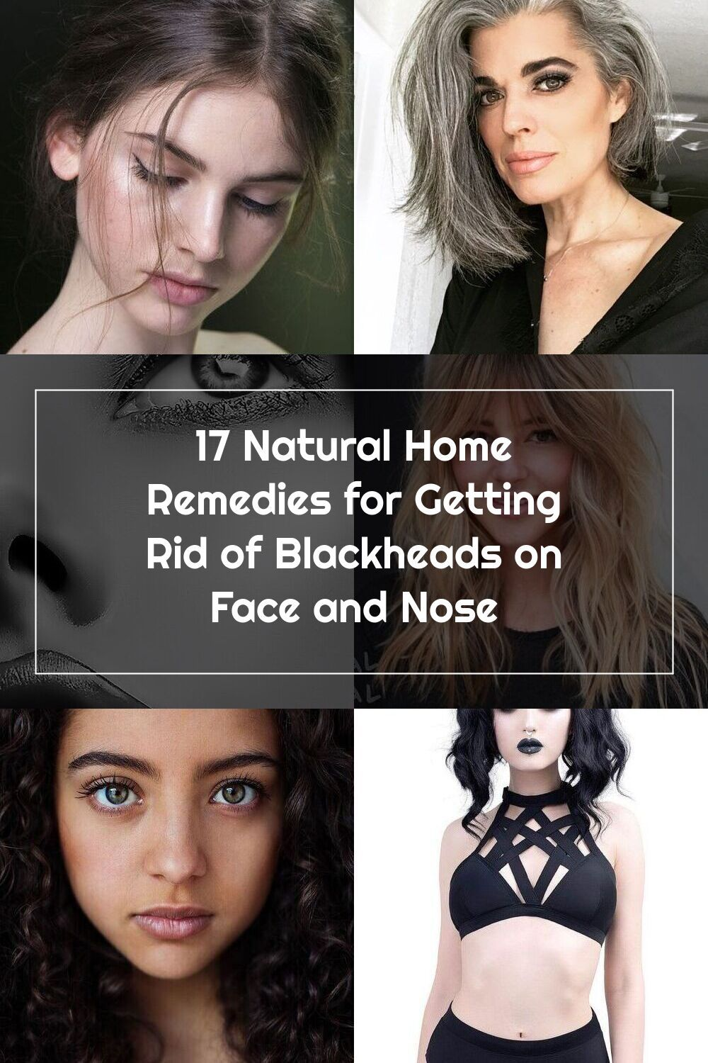 17 Natural Home Remedies for Getting Rid of Blackheads on