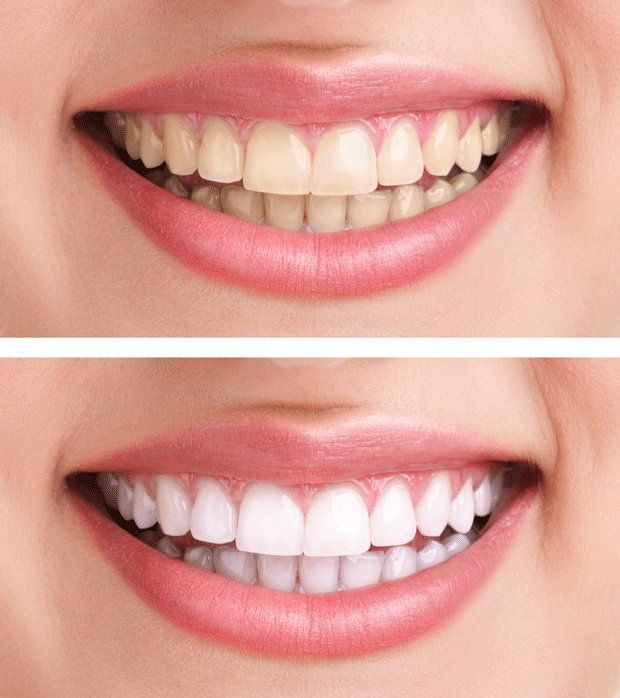 Photo of Instead of toothpaste: This home remedy makes your teeth whiter