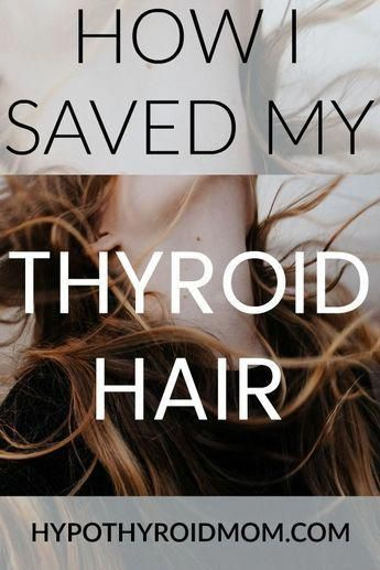10 Things that Stopped My Thyroid Hair Loss | Hypothyroid Mom 764435f7350a439d8b7c7d45f3ea9a56