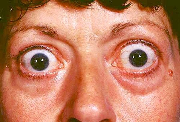 exophthalmos (With images) | Thyroid disease symptoms, Common eye ...