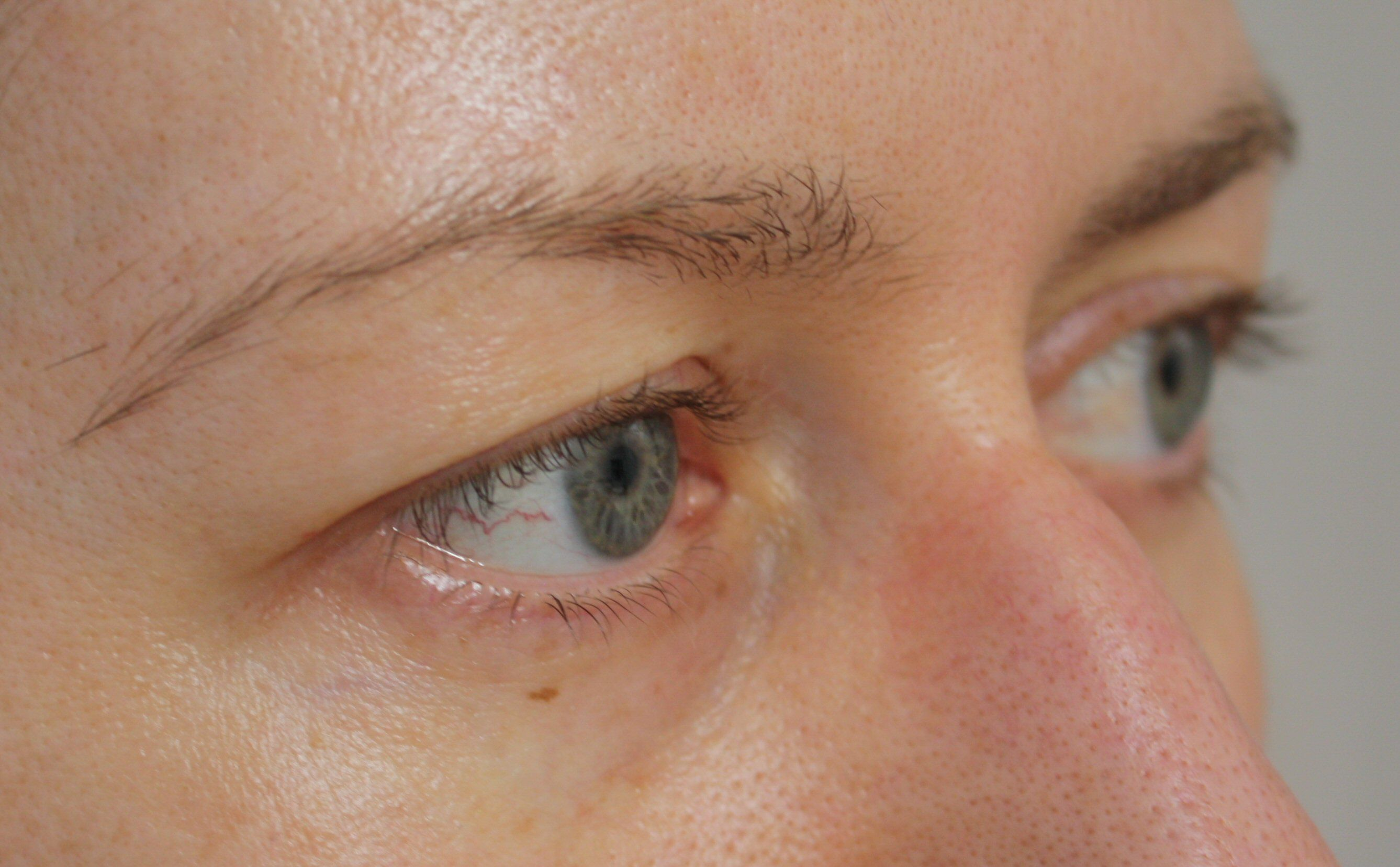 Exersize for drooping eyelids diy beauty treatments