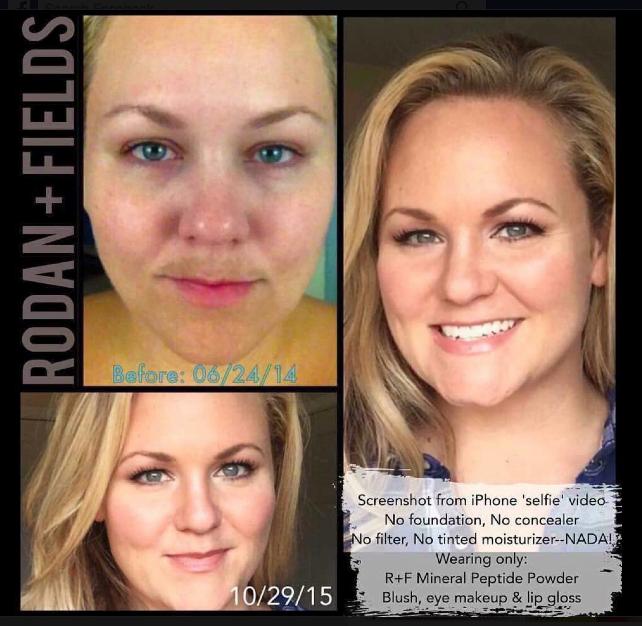Rodan And Fields Reverse Eye Cream Amp Md Nrs Macro