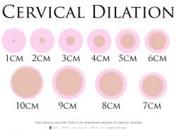 This poster depicts cervical dilation from 1 to 10 cm  | CAPPA's