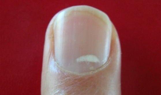 76547c5aecae3c61b2ddd2506f595ab7 - How To Get Rid Of White Spots On My Toenails