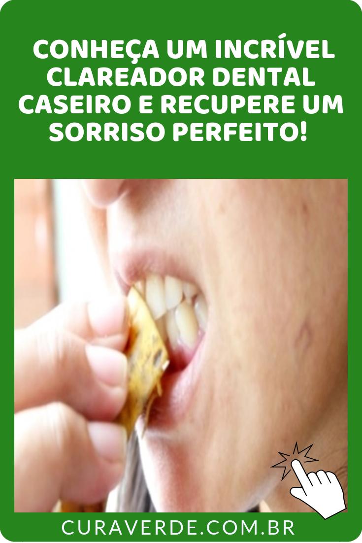 Como Clarear Os Dentes Com Casca De Banana E Recuperar O Sorriso