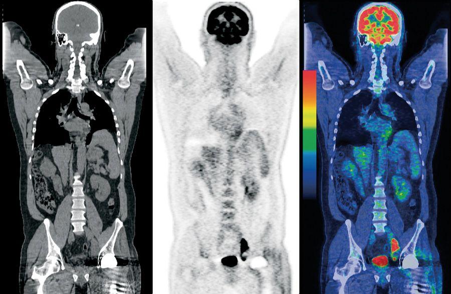 PET/CT Diagnostic Imaging Services Pet ct, Diagnostic
