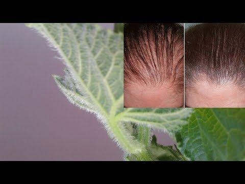 اكتشاف نبات يعيد انبات الشعر ويمنع التساقط نهائي وداعا لعمليات زرع الشعر الصناعي Youtube Hair Videos Grow Hair Egyptian Beauty