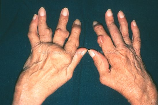 arthritic fingers , Google Search