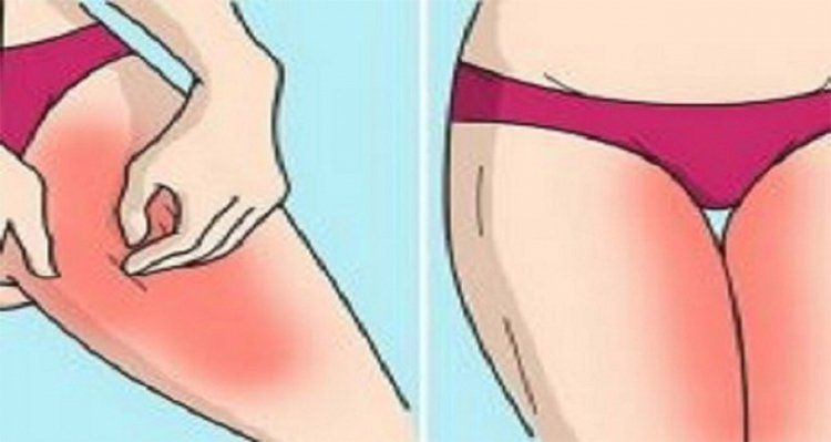 Celiac Disease Has A Little Sister Dermatitis Herpetiformis