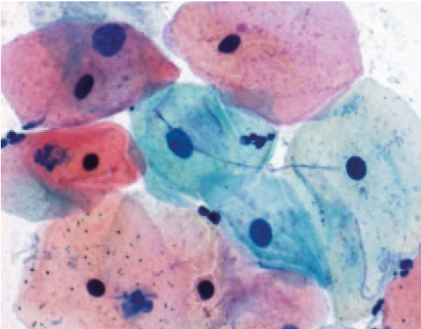 Introduction, Principle, Reagent Preparation, Procedure and Result Interpretation of both Progressive and Regressive Papanicolaou Stain or PAP Stain.
