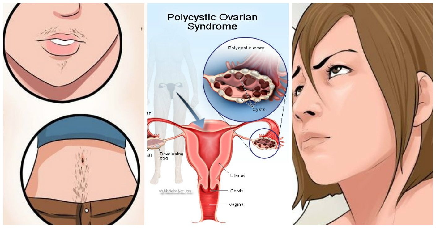 Signs And Symptoms Of Polycystic Ovary Syndrome And Its
