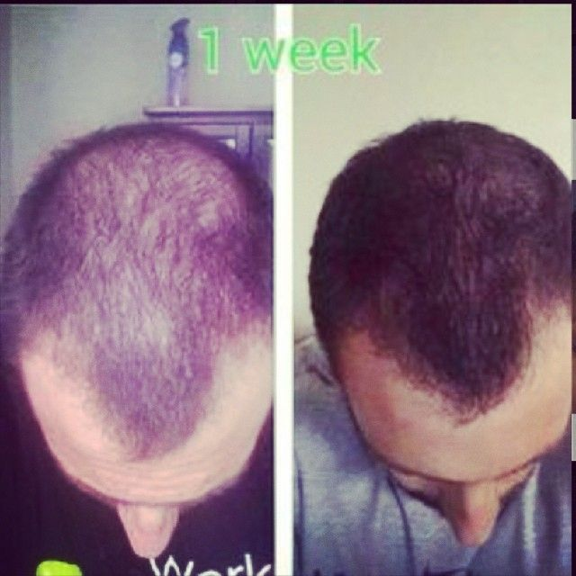 is your husbands hair thinning out use hair skin and nails to grow healthy full hair again yes it works on men too