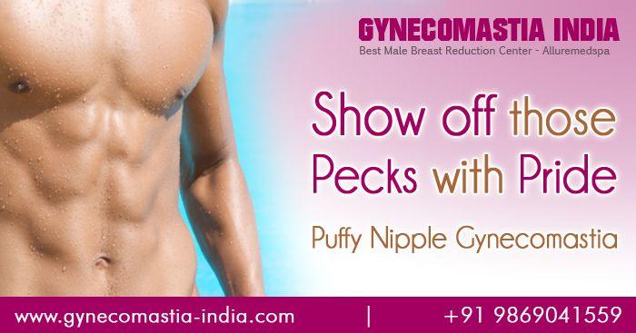 nipples list Puffy areolas
