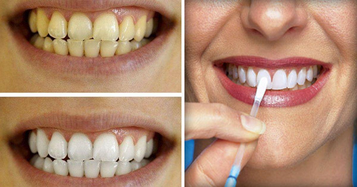 Remedios caseros para aclarar los dientes rapido