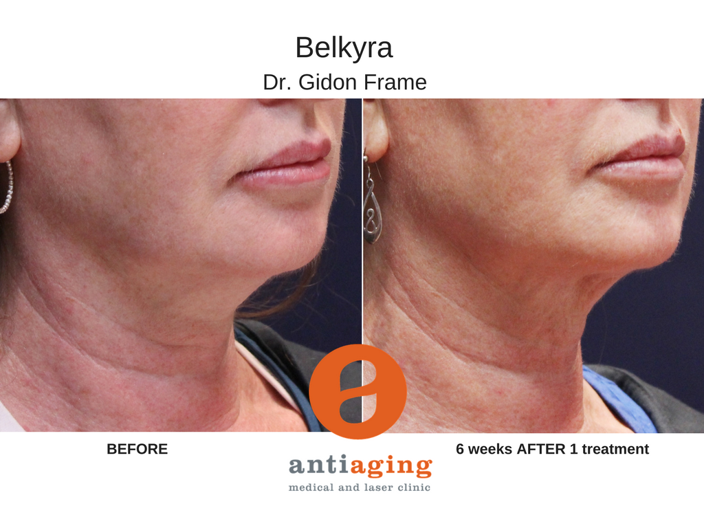 Belkyra is a fat-dissolving injectable solution to double