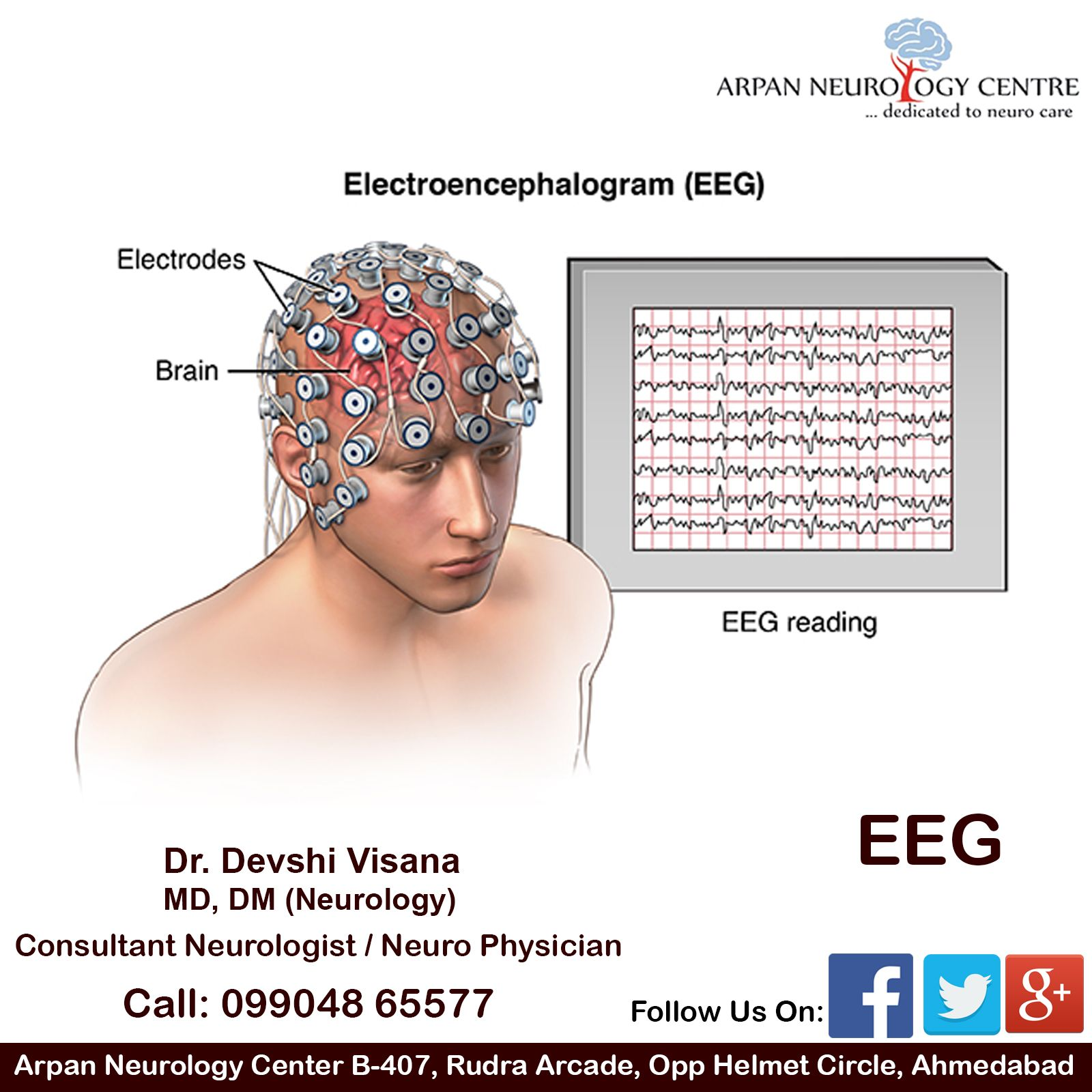 An Electroencephalogram Eeg Is A Test That Measures And Records Emg Hz Wiring Diagram The Electrical Activity Of