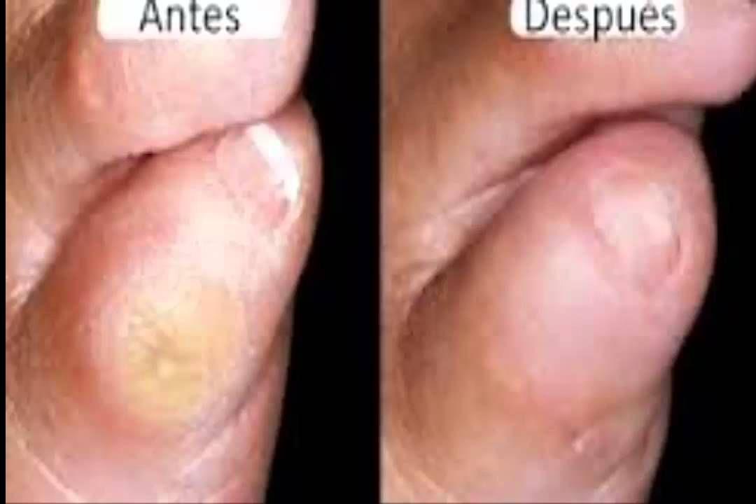 como quitar un callo en el dedo pequeno del pie